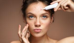 Aloe Vera for Acne Scar Treatment